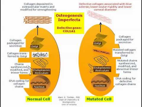 osteogenesis imperfecta  - genetic defects