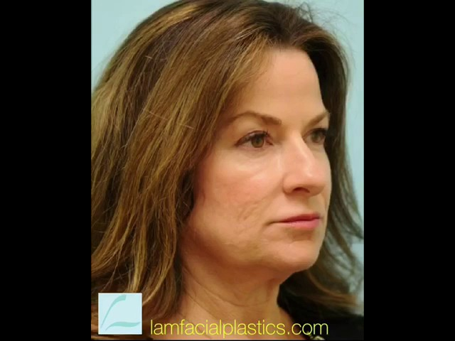 Dallas Facelift, Rhinoplasty, Fat Graft, Upper Blepharoplasty Video Transformation