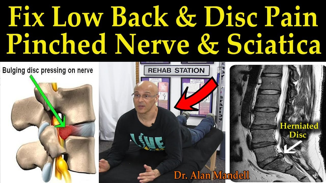 pinched nerve in neck how to fix