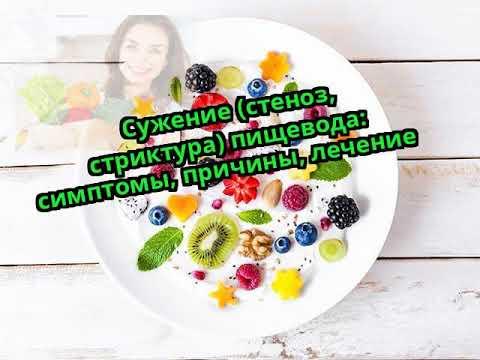 Сужение (стеноз, стриктура) пищевода: симптомы, причины, лечение
