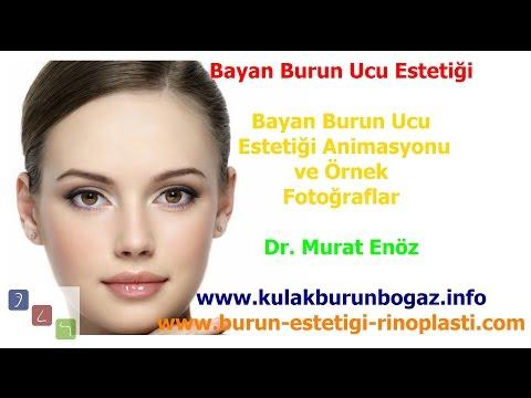 Bayan Burun Ucu Estetiği  Ameliyatı, Animasyon ve Örnek Fotoğraflar