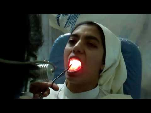 Rotten Tooth Causing Sinusitis - Dr Paulose FRCS (ENT)