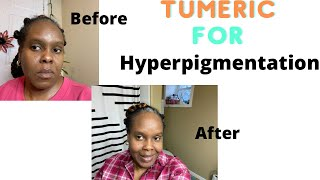 Tumeric Mask For Hyperpigmentaion