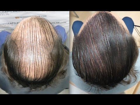 5303 Fu S Hair Transplant By Fue Technique Diffuse