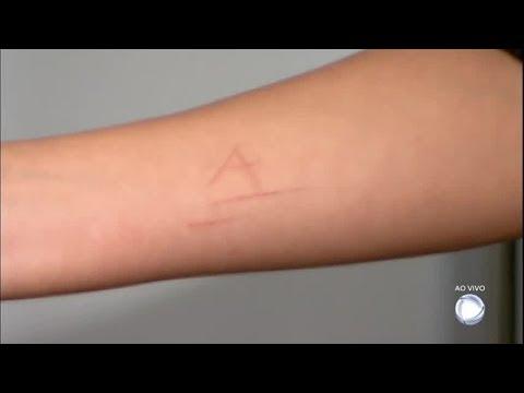 Maníaco marca o corpo de jovem de 14 anos com uma faca