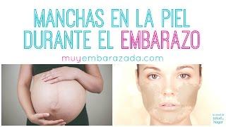 La en embarazo durante de el sangre manchas piel