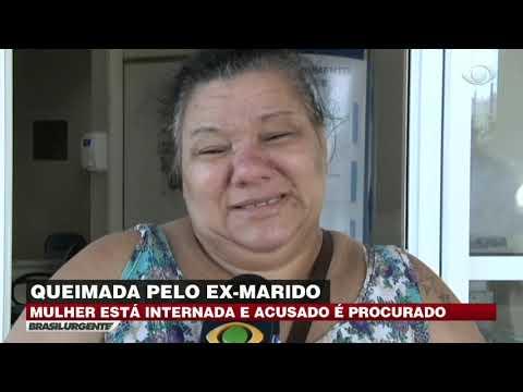 ES: Mulher é queimada pelo ex-marido