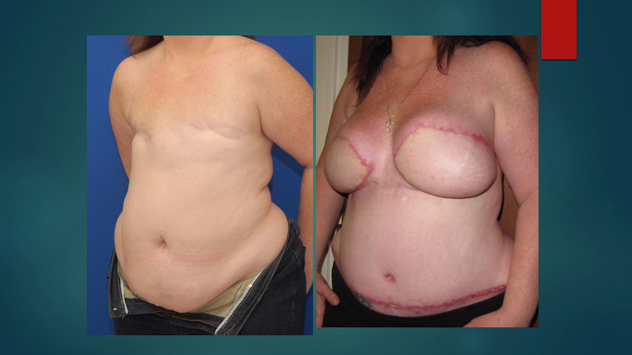 Nevada breast reconstruction