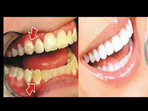 comment blanchir ses dents en 2 minutes avoir un tres beau sourire youtube. Black Bedroom Furniture Sets. Home Design Ideas