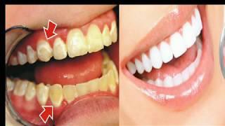 Comment Blanchir Ses Dents En 2 Minutes, Avoir Un Tres Beau Sourire