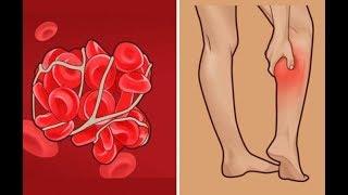 Как можно решить проблему Плохого Кровообращения Всего за 5 минут?