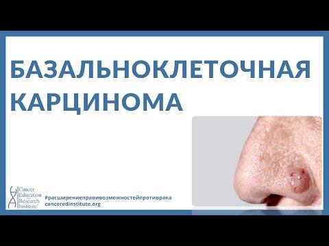 Рак языка: признаки и симптомы, фото начальной стадии