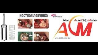 Применение Костной ловушки Neobiotech AutoChipMaker(Купить Костную ловушку NeoBiotech http://www.all-dent.com.ua/collection/NeoBiotech/product/kostnayalovushka., 2014-09-21T15:24:13.000Z)
