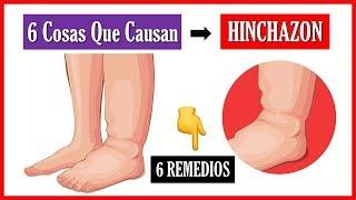 La hinchazón en Cómo pies dolorosa y reducir piernas