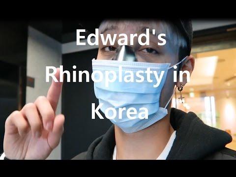 Edward Avila Gets Rhinoplasty in Korea || Vlog