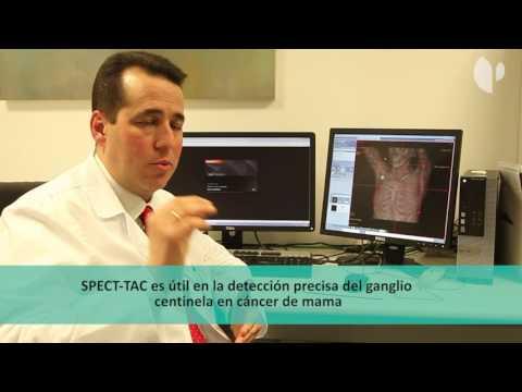 Nuevo SPECT-TAC del Hospital Universitario Quirónsalud Madrid