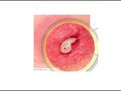 what does the core of a boil look like , the boil core picture