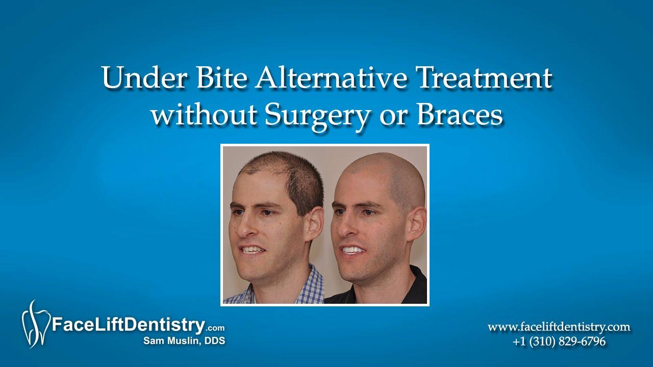 underbite alternative treatment without surgery or braces