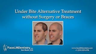 Under Bite Alternative Treatment Without Surgery Or Braces