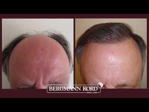 Μεταμόσχευση Μαλλιών – Με την Υπογραφή Bergmann Kord  – Αποτελέσματα – 001