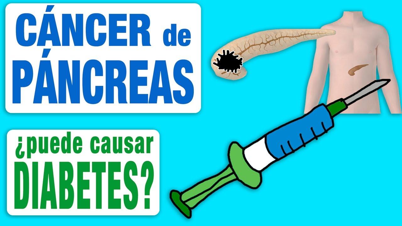 dieta macrobiotica para cancer de pancreas