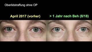 Augenlidstraffung ohne OP - Vorher Nachher Vergleich über 1 Jahr nach der Behandlung