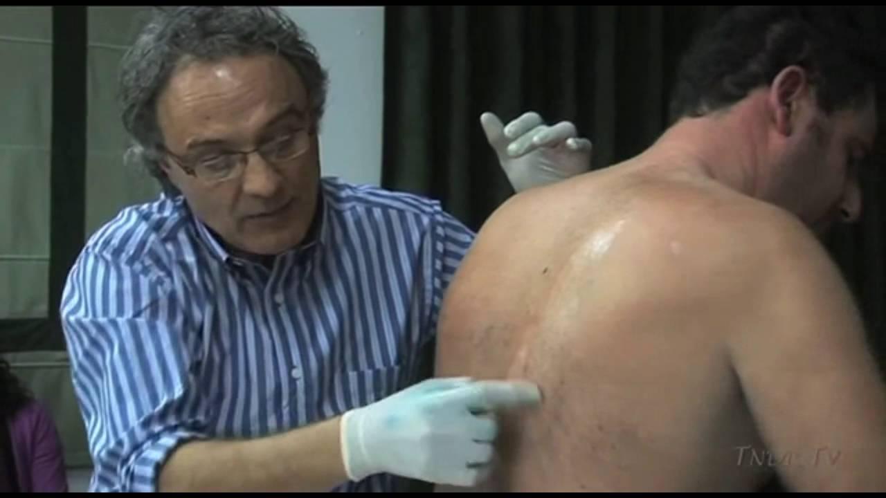 Download Caso clínico 5 - DISCOPATÍA LUMBAR - TNDR