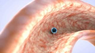 Fecundacion in vitro (Parte 1) - Salud de la Mujer Dexeus