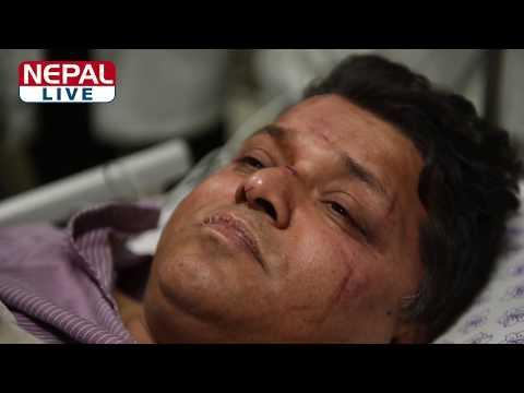 Exclusive: Interview with US-Bangla air crash's injured passenger keshav pandey
