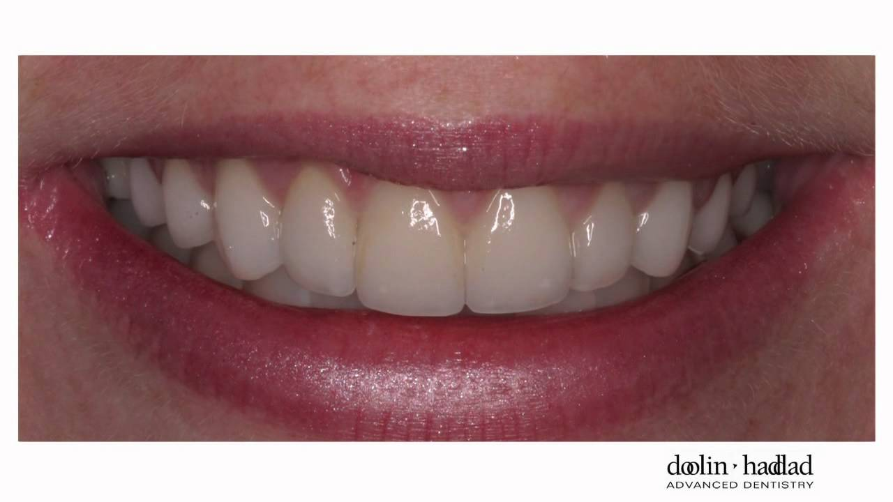 My porcelain veneers are so natural looking  love them also youtube rh