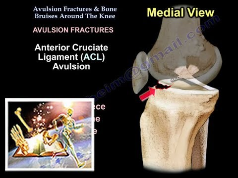Avulsion Fractures & Bone Bruises Around The Knee - Everything You Need To Know - Dr. Nabil Ebraheim