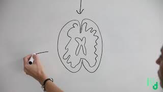 La Minute des Etourdis -  Alzheimer, c'est quoi ? (Episode 1)