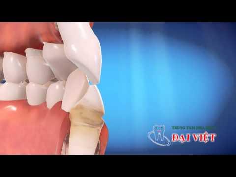 Niềng răng không mắc cài Invisalign - Nha khoa Đai Việt