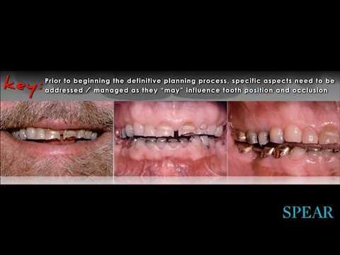 Introduction to Airway Prosthodontics