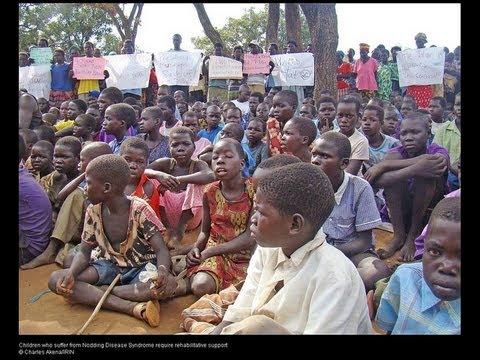 Uganda's nodding syndrome