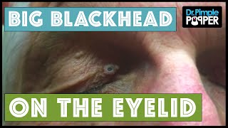 A Large Blackhead on the Right Eyelid.. Maybe even a Dilated Pore of Winer?