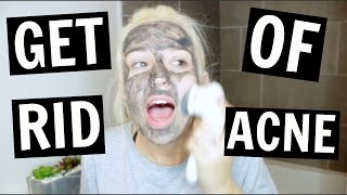 Video how to get rid of acne like a DAMN PRO download MP3, 3GP, MP4, WEBM, AVI, FLV Januari 2018