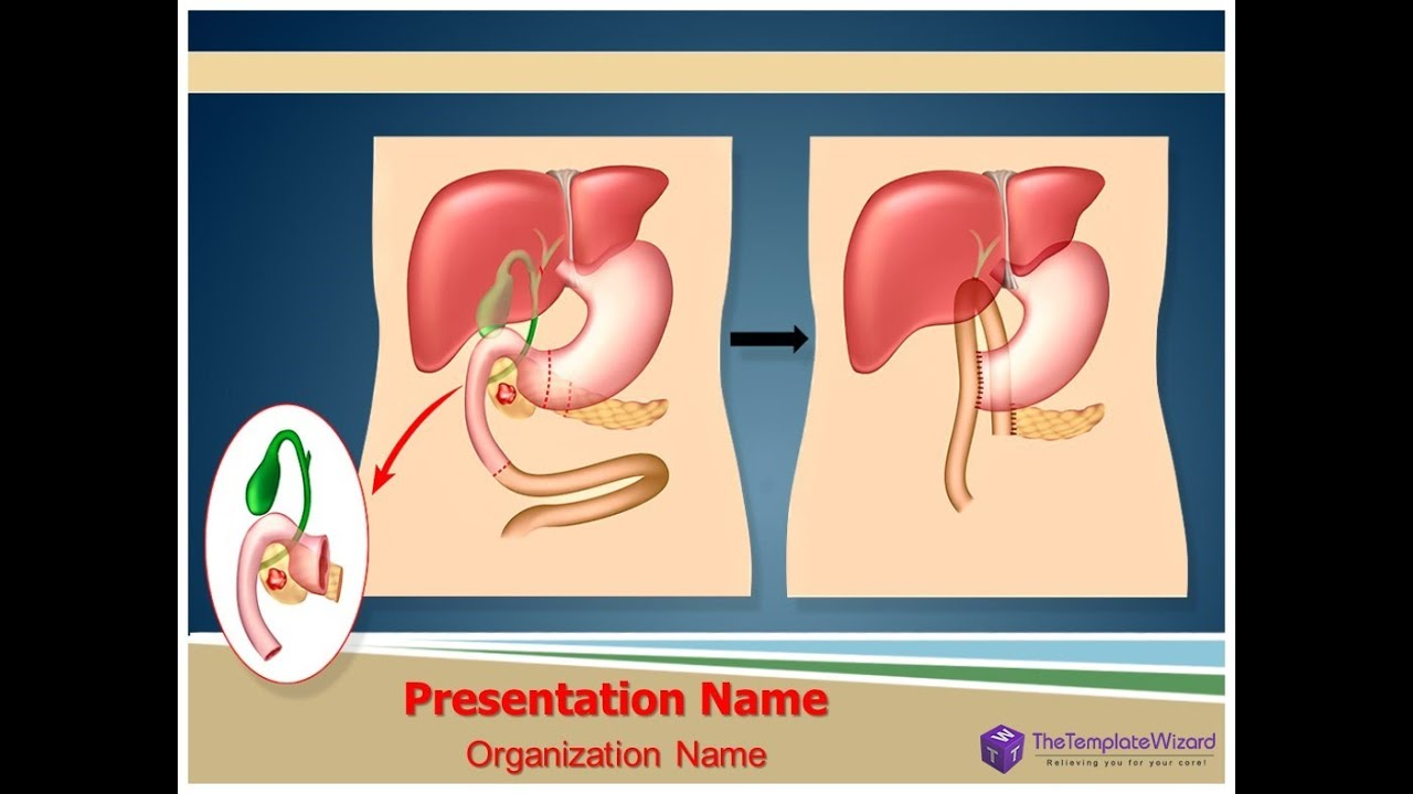 Bile duct cancer powerpoint template thetemplatewizard youtube bile duct cancer powerpoint template thetemplatewizard templates for medical toneelgroepblik