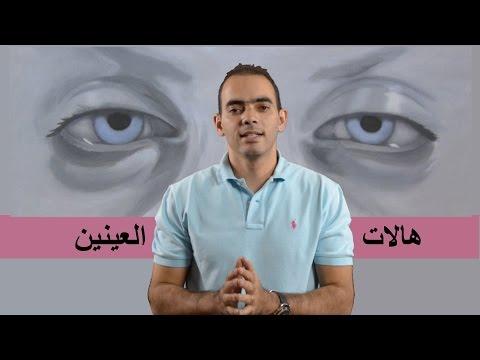 علاج الهالات والانتفاخات تحت العين - د. محمد الناظر