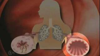 What is Asthma? - The Children