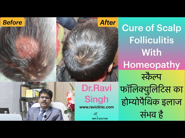 Cure of Scalp Folliculitis with Homeopathy Dr.Ravi Singh