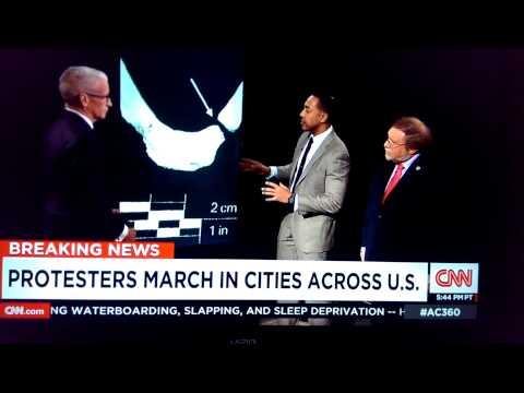 CNN Eric Garner Autopsy Report