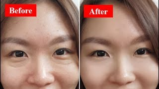 How To Get Rid Of Your Eye Bags Fast & Naturally At Home!