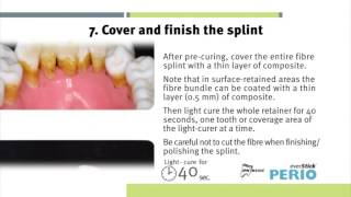 Instructions for use everStickPERIO glass-fibre reinforcement for periodontal splinting