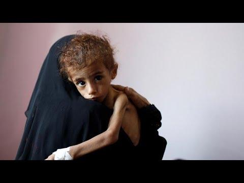 برنامج الغذاء العالمي التابع للأمم المتحدة يحذر من مجاعة وشيكة في اليمن…  - 07:54-2018 / 10 / 17