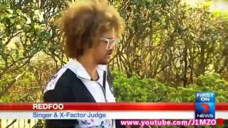 X Factor Australia Judge Redfoo - Victim of Glassing Attack at Sydney Hotel