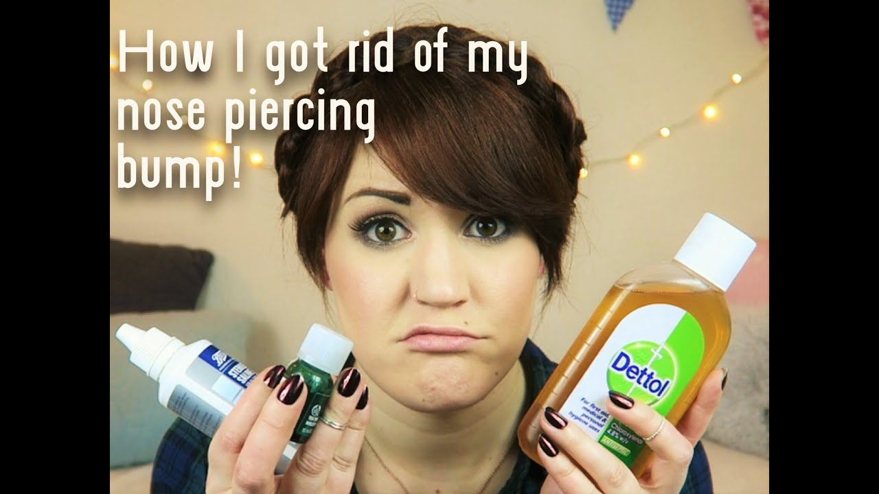 How I Got Rid Of My Nose Piercing Bump Quickly Youtube