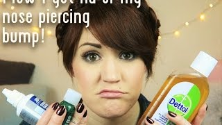 How I got rid of my nose piercing bump quickly!