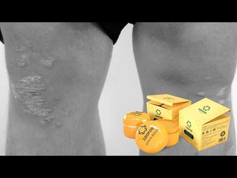 Крем-воск «ЗДОРОВ» от псориаза