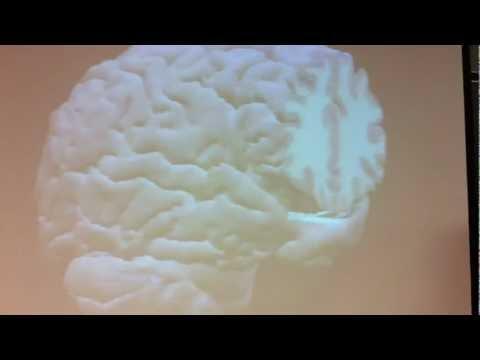 Brain Structures 1